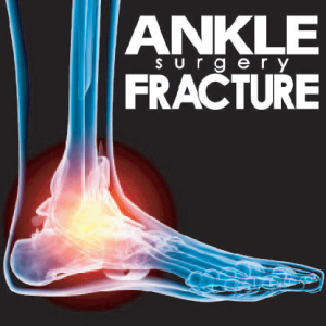 One Fee Surgery Ankle