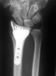 one-fee-fracture-2