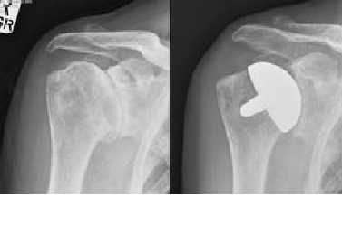 One Fee Surgery Partial Shoulder Replacement